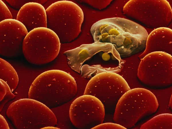 Malaria parasite invading and rupturing red blood cells