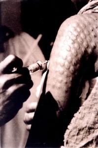 http://web.stanford.edu/class/humbio103/ParaSites2005/Leprosy/history.htm